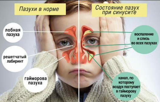 Как лечить желтые сопли у ребенка