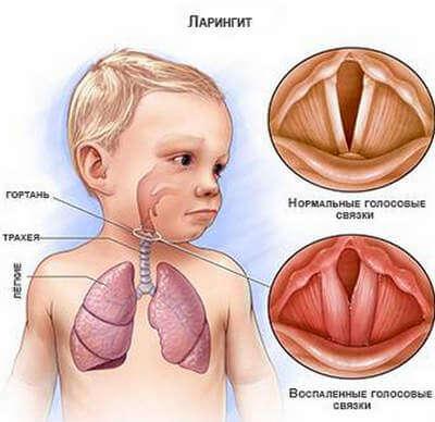 Какой вид кашля бывает у ребенка при ларингите