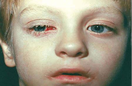 Конъюнктивит при аденовирусной инфекции