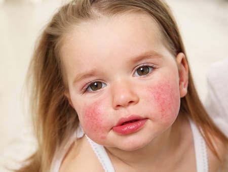 аллергия на омега-3